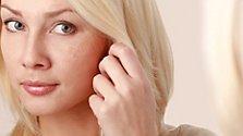 Pigmentflecken: Ursachen und Behandlungen
